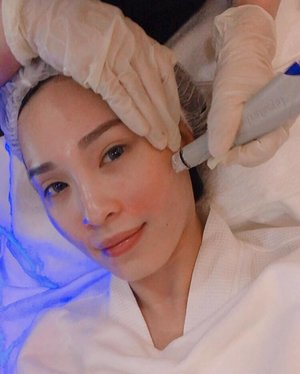 MOST PAINLESS EXTRACTION EVER with @hydrafacial.sg! Visited @calvinchanaesthetics last week and indulged my skin with a session of Hydra Facial to replenish the moisture levels of my skin. Felt really refreshed after the session and you can really see my skin glow even without makeup!  #hydrafacialsg #calvinchanaesthetics #sgig #igsg #clozette #herworldbeautyclub #sgbeauty